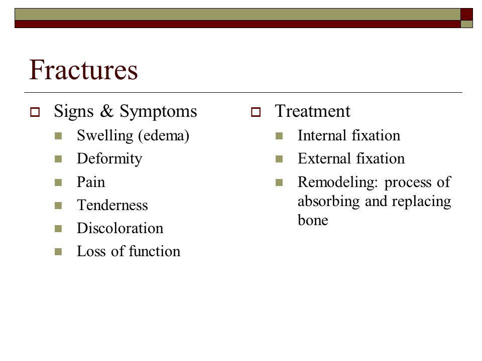 Fractures Signs & Symptoms Treatment Swelling (edema) Deformity Pain