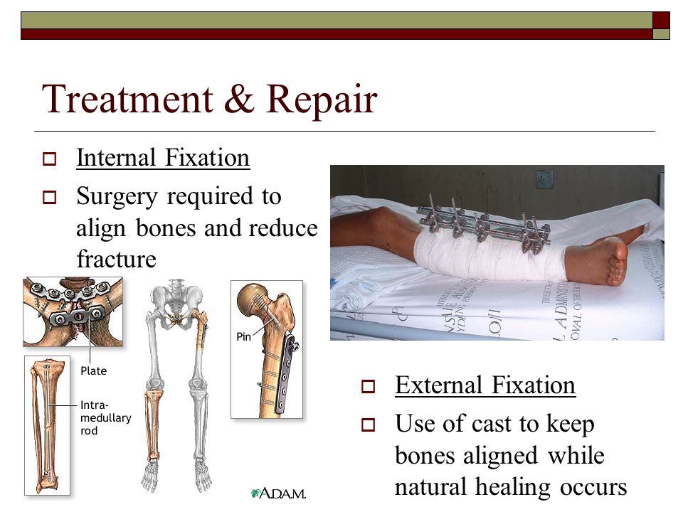 Treatment & Repair Internal Fixation