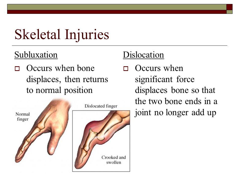 Skeletal Injuries Subluxation