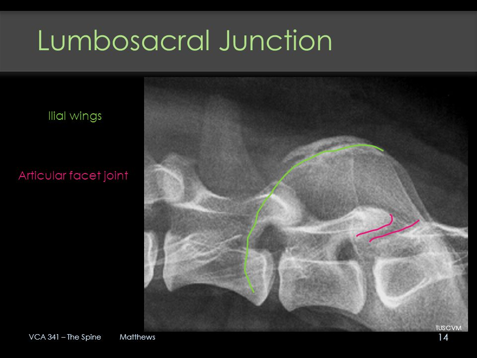 Lumbosacral Junction Ilial wings Articular facet joint