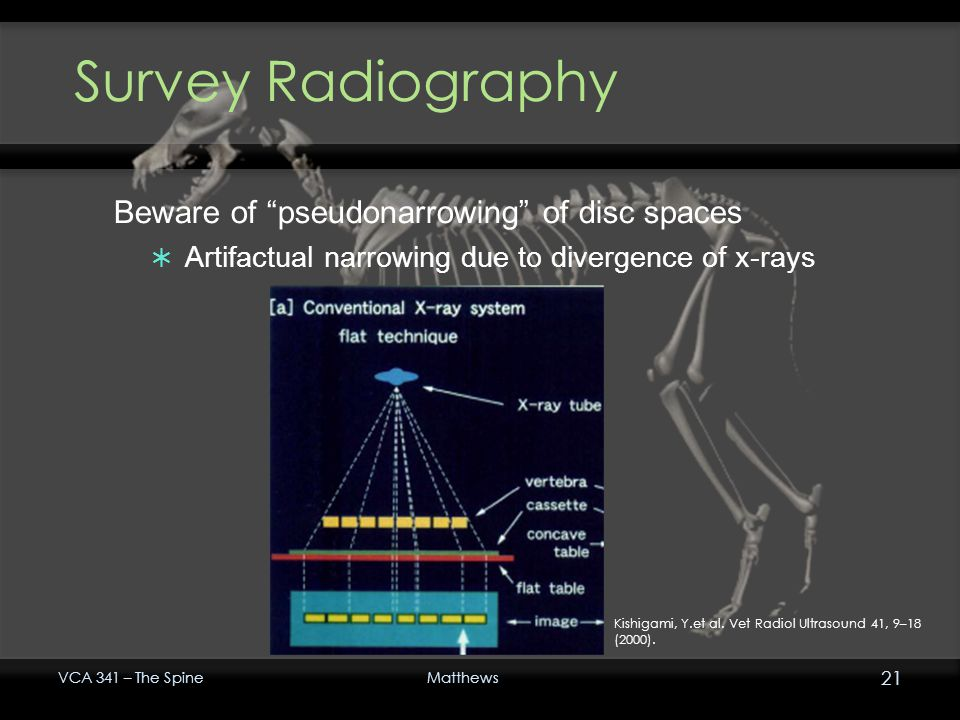 Survey Radiography Beware of pseudonarrowing of disc spaces