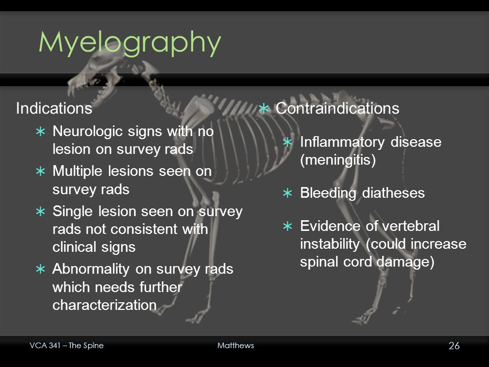 Myelography Indications Contraindications