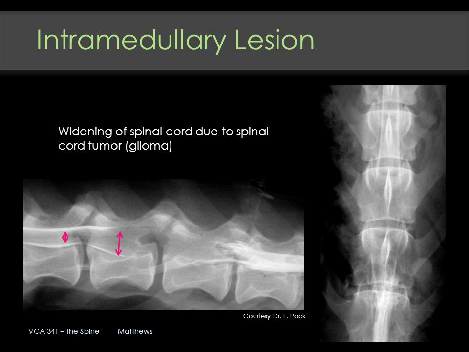 Intramedullary Lesion
