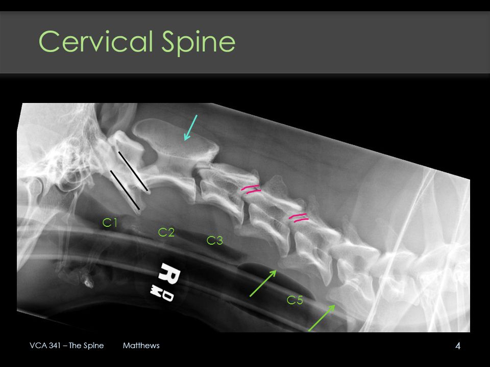 Cervical Spine C1 C2 C3 C5 VCA 341 – The Spine Matthews