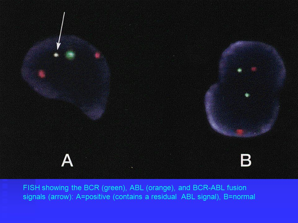 FISH showing the BCR (green), ABL (orange), and BCR-ABL fusion signals (arrow): A=positive (contains a residual ABL signal), B=normal