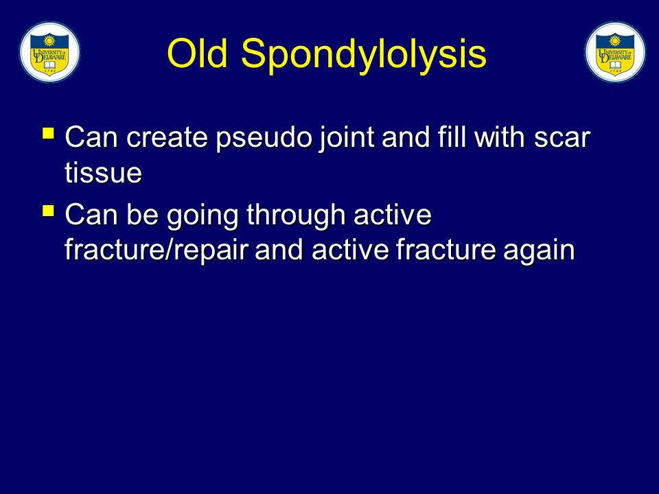 Old Spondylolysis Can create pseudo joint and fill with scar tissue