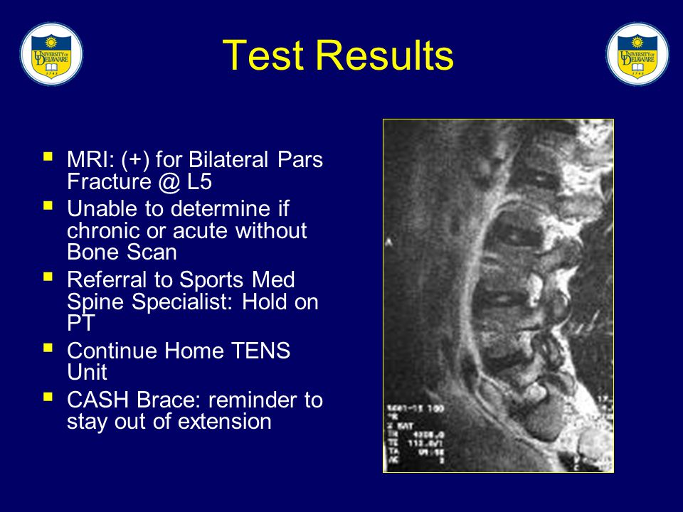 Test Results MRI: (+) for Bilateral Pars Fracture @ L5