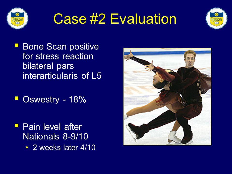 Case #2 Evaluation Bone Scan positive for stress reaction bilateral pars interarticularis of L5. Oswestry - 18%