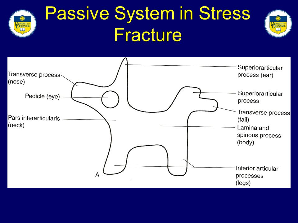Passive System in Stress Fracture