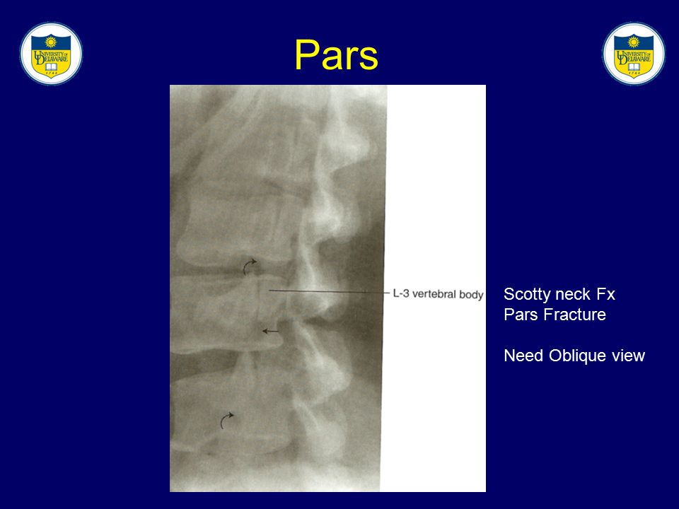 Pars Scotty neck Fx Pars Fracture Need Oblique view