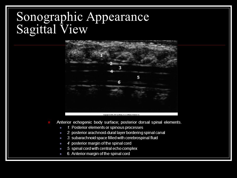 Sonographic Appearance Sagittal View