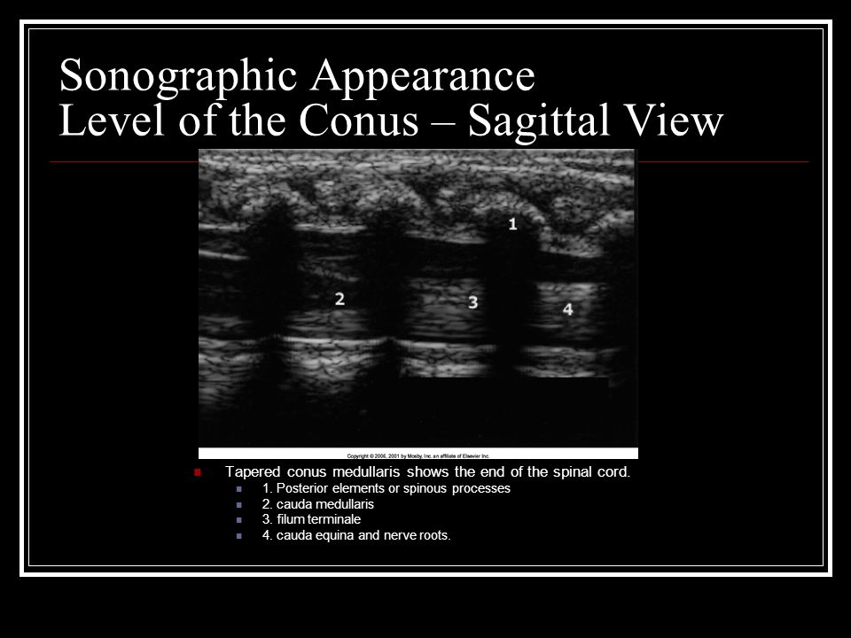 Sonographic Appearance Level of the Conus – Sagittal View