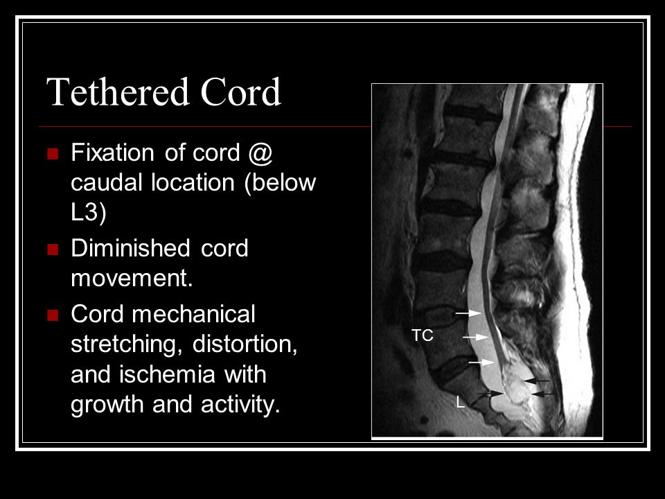 Tethered Cord Fixation of caudal location (below L3)