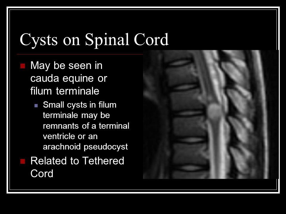 Cysts on Spinal Cord May be seen in cauda equine or filum terminale