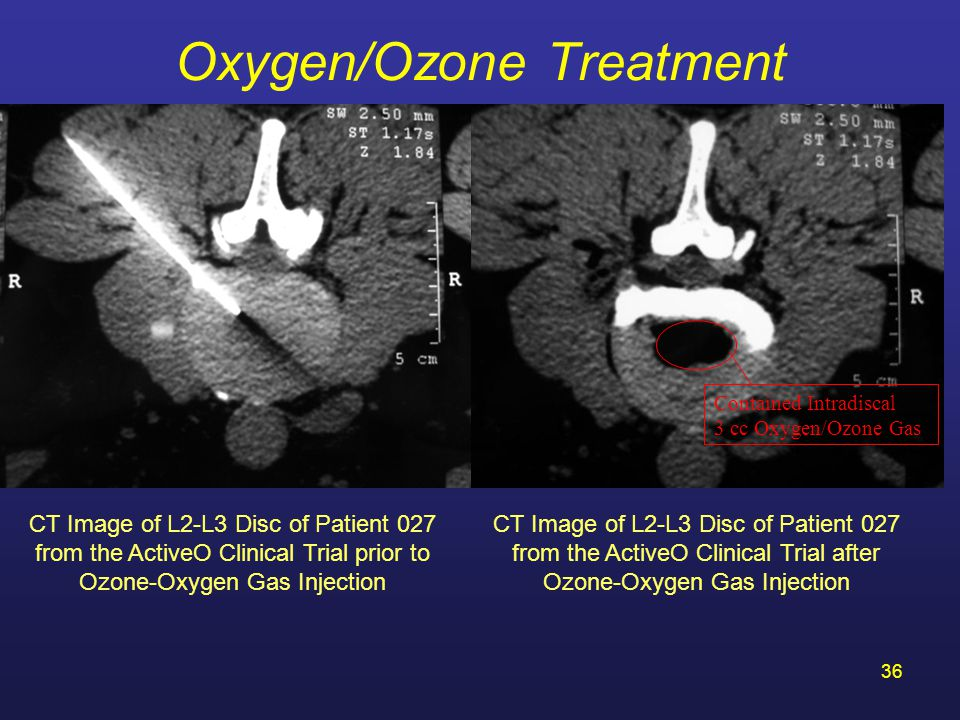 Oxygen/Ozone Treatment