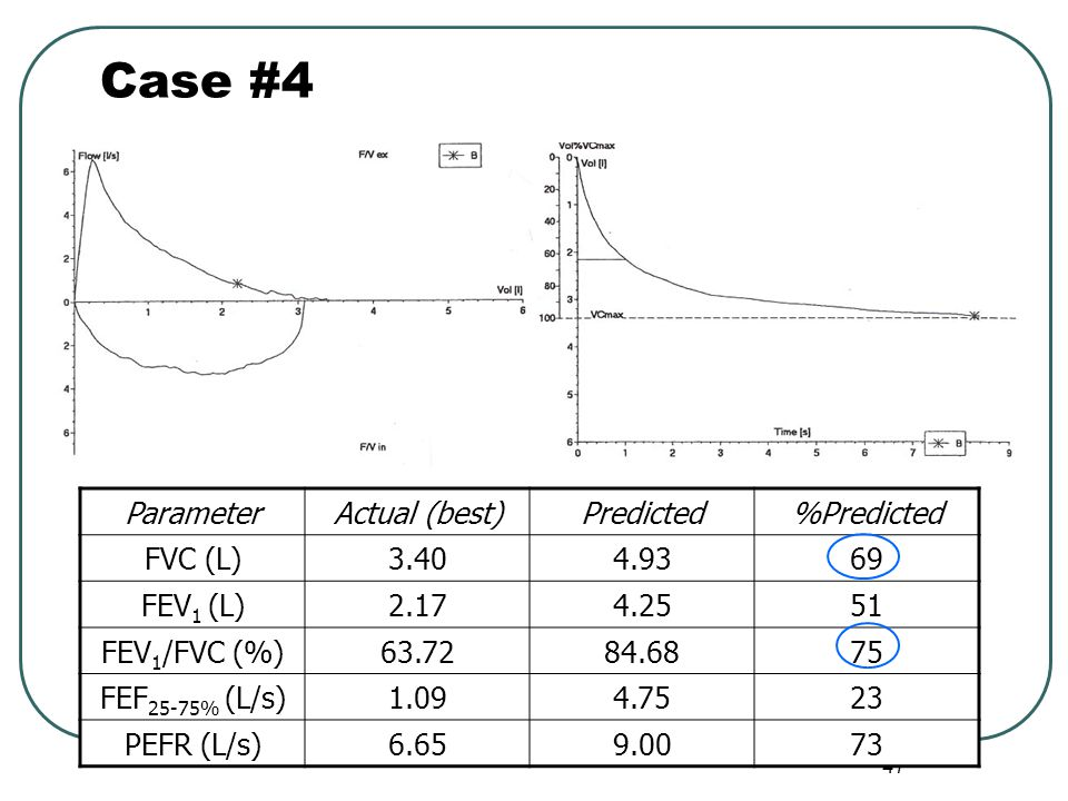 Case #4 Parameter Actual (best) Predicted %Predicted FVC (L)