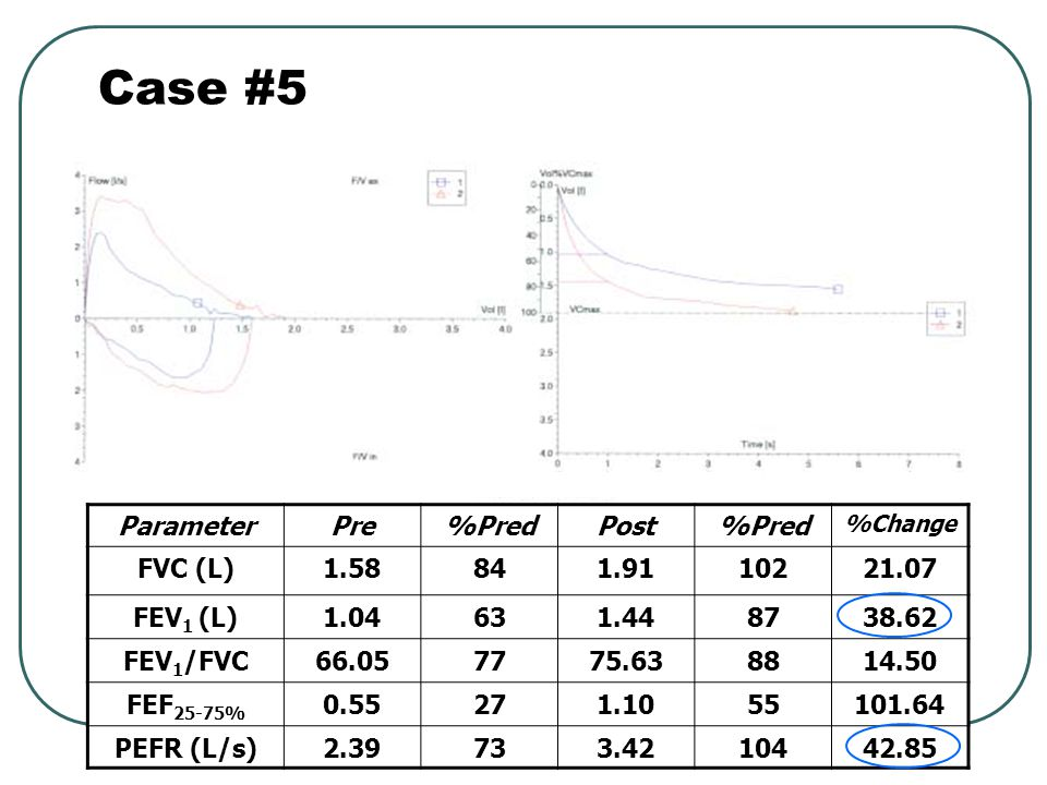Case #5 Parameter Pre %Pred Post FVC (L) 1.58 84 1.91 102 21.07
