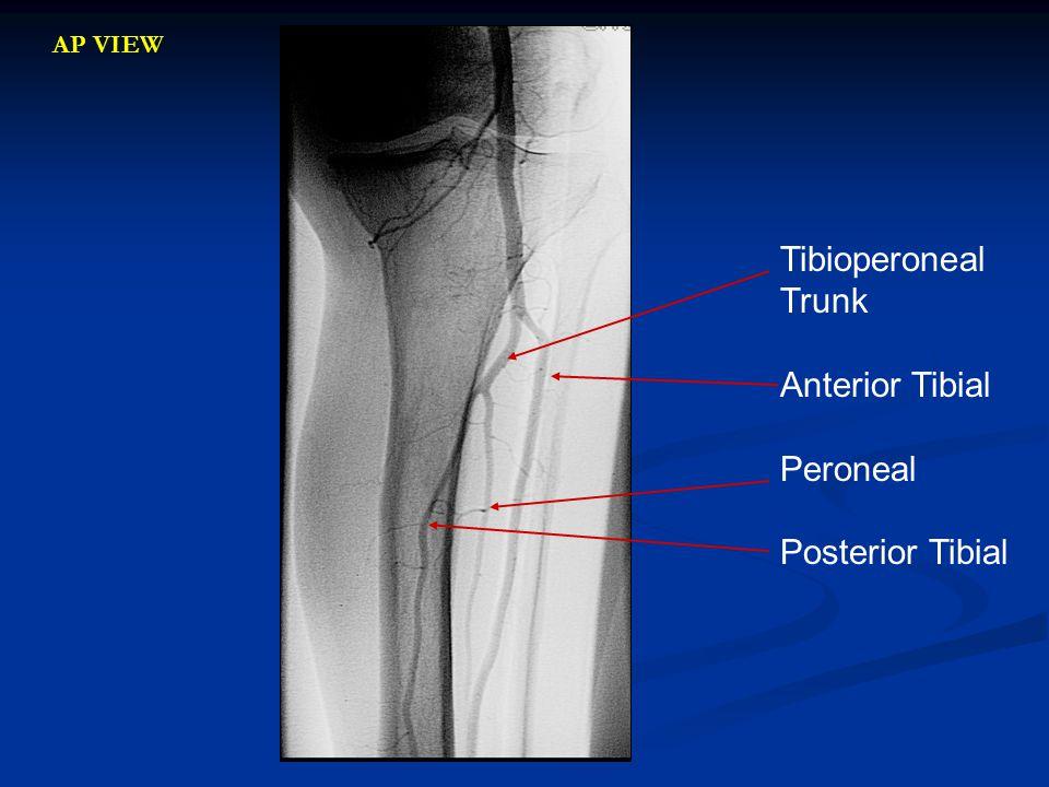 AP VIEW Tibioperoneal Trunk Anterior Tibial Peroneal Posterior Tibial