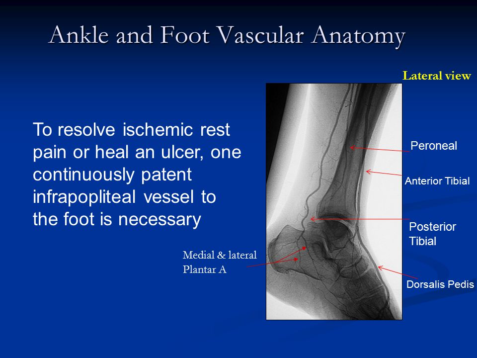 Ankle and Foot Vascular Anatomy