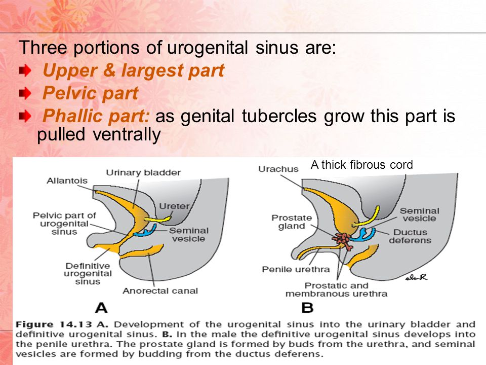 Three portions of urogenital sinus are: Upper & largest part