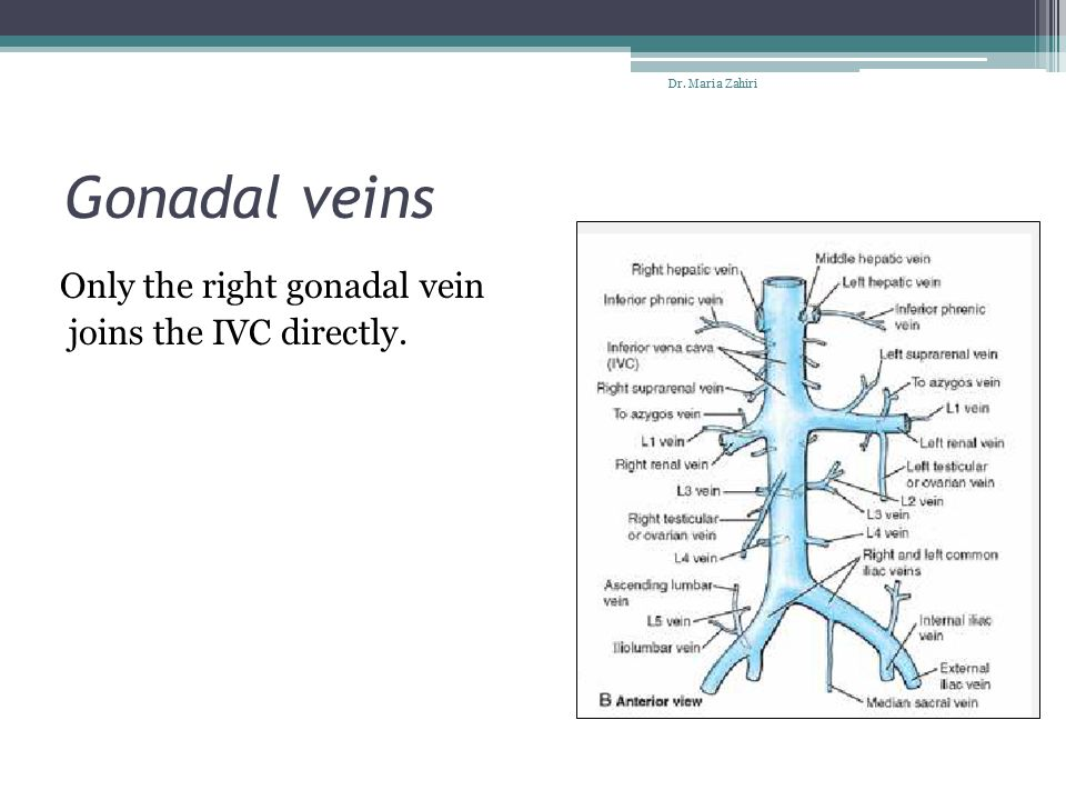 Gonadal veins Only the right gonadal vein joins the IVC directly.