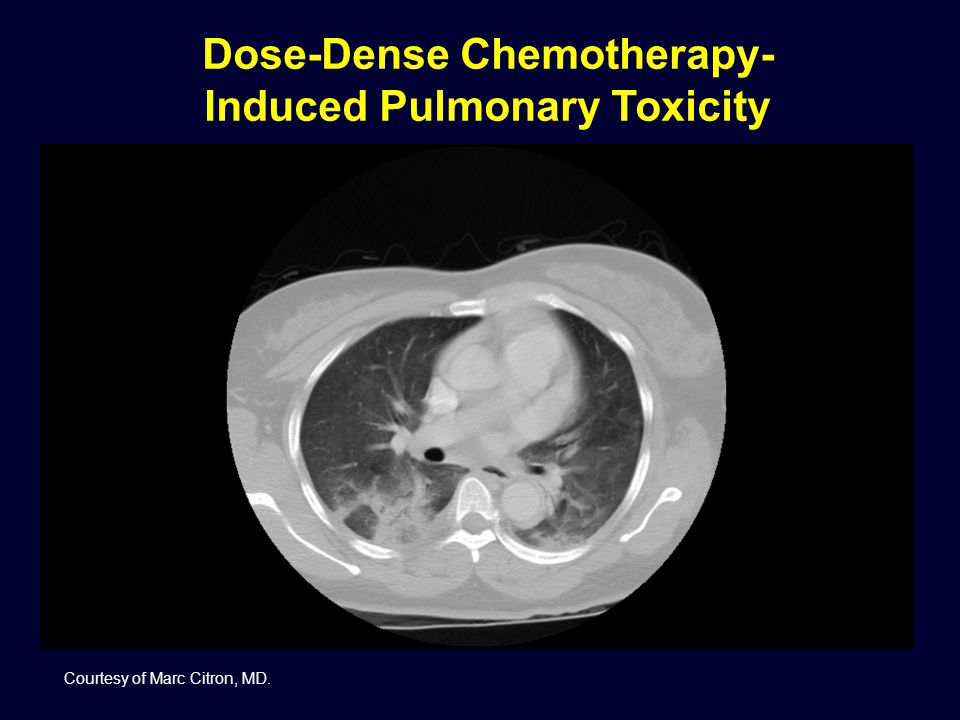 Dose-Dense Chemotherapy-Induced Pulmonary Toxicity