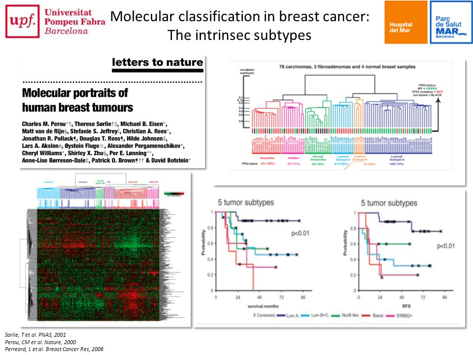 Molecular classification in breast cancer: The intrinsec subtypes