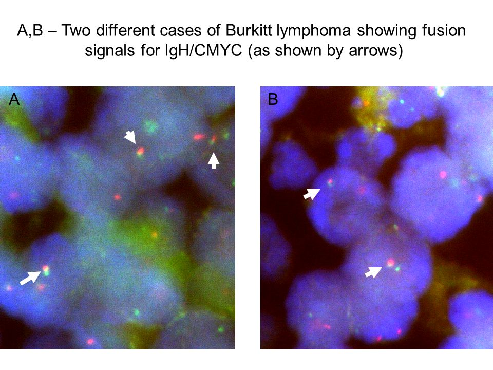 A,B – Two different cases of Burkitt lymphoma showing fusion