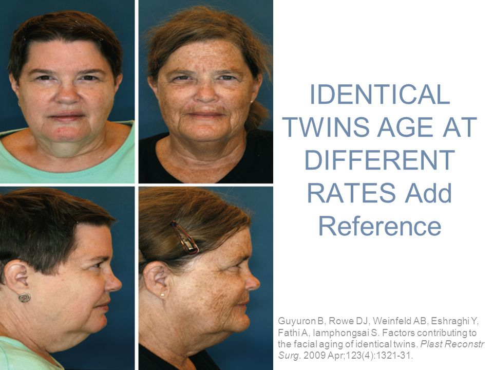 IDENTICAL TWINS AGE AT DIFFERENT RATES Add Reference