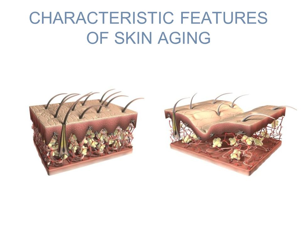 CHARACTERISTIC FEATURES OF SKIN AGING