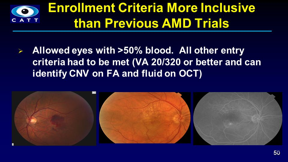 Enrollment Criteria More Inclusive than Previous AMD Trials