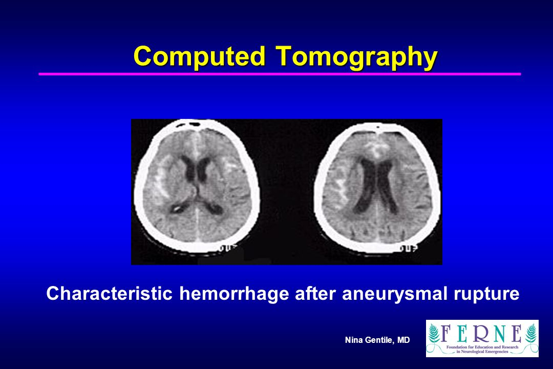 Computed Tomography Characteristic hemorrhage after aneurysmal rupture