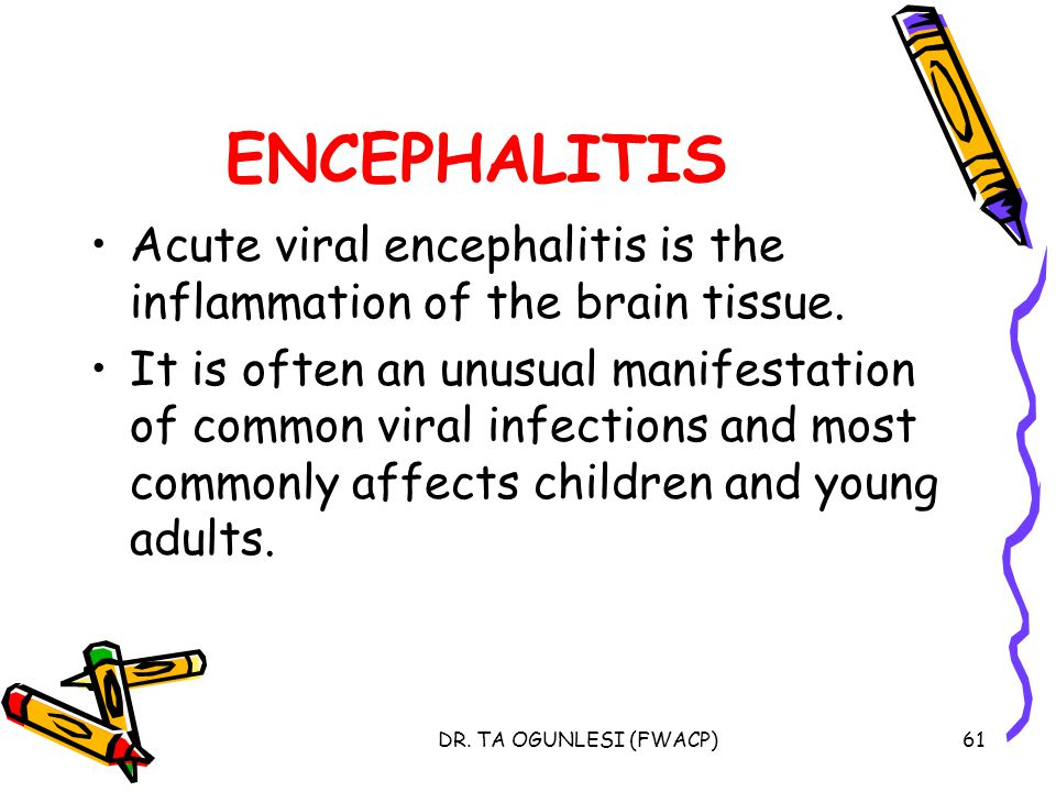 ENCEPHALITIS Acute viral encephalitis is the inflammation of the brain tissue.