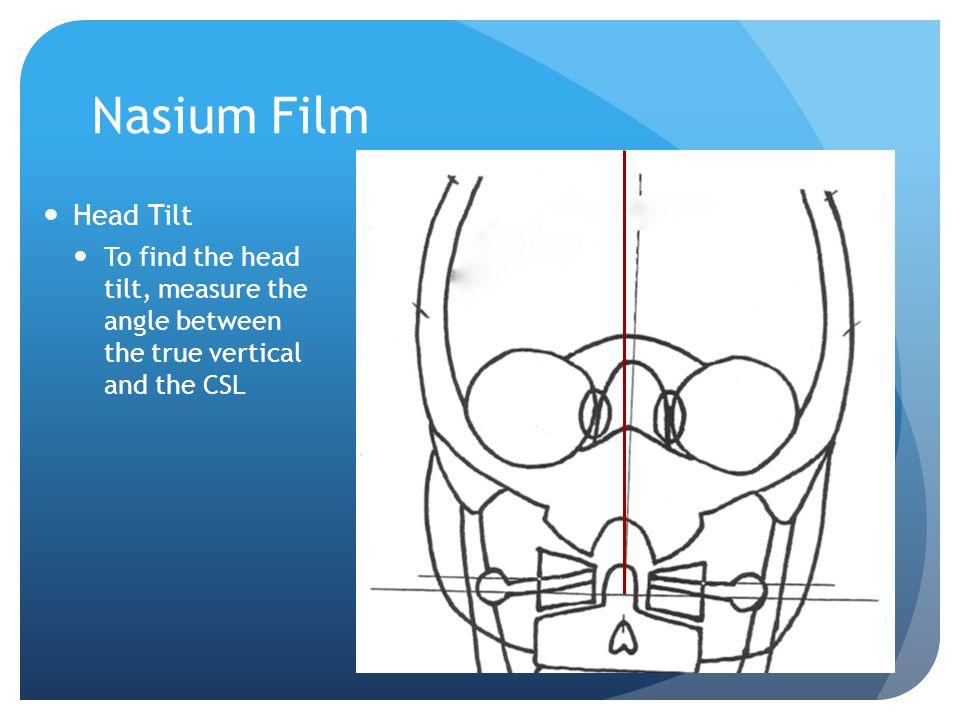 Nasium Film Head Tilt.