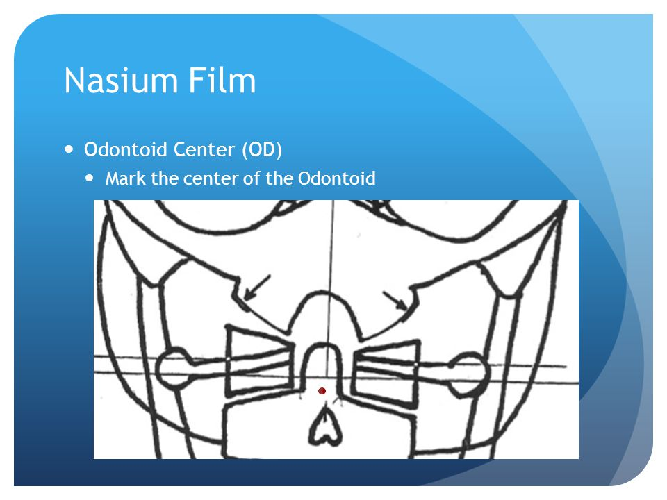 Nasium Film Odontoid Center (OD) Mark the center of the Odontoid