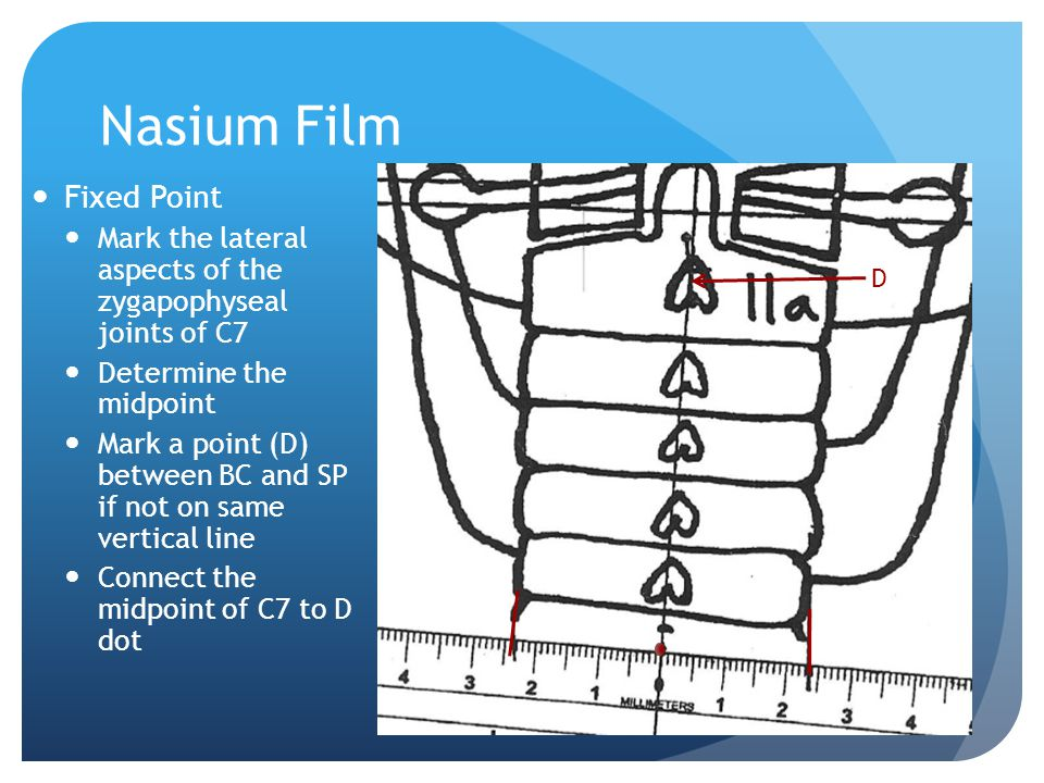 Nasium Film Fixed Point
