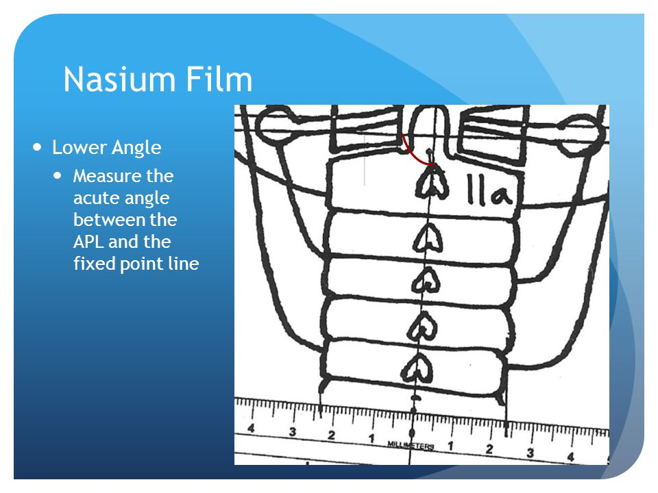 Nasium Film Lower Angle