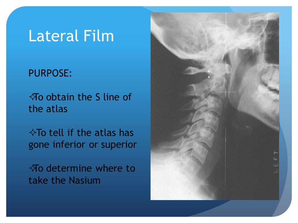 Lateral Film PURPOSE: To obtain the S line of the atlas