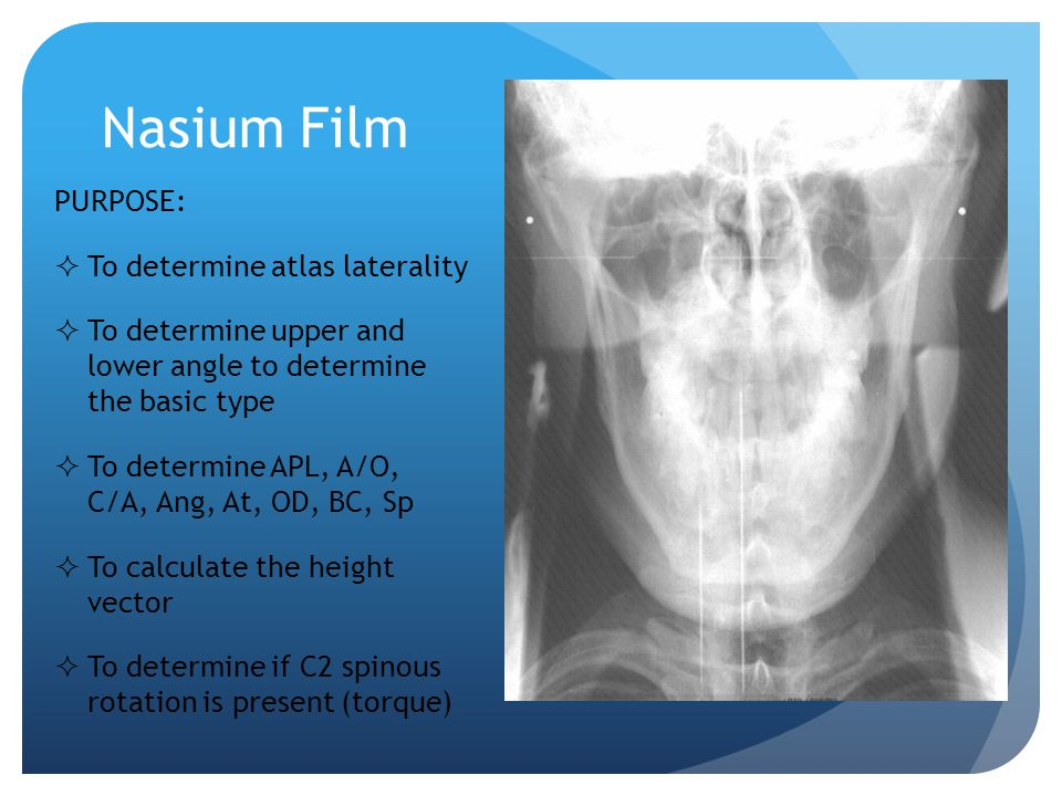 Nasium Film PURPOSE: To determine atlas laterality