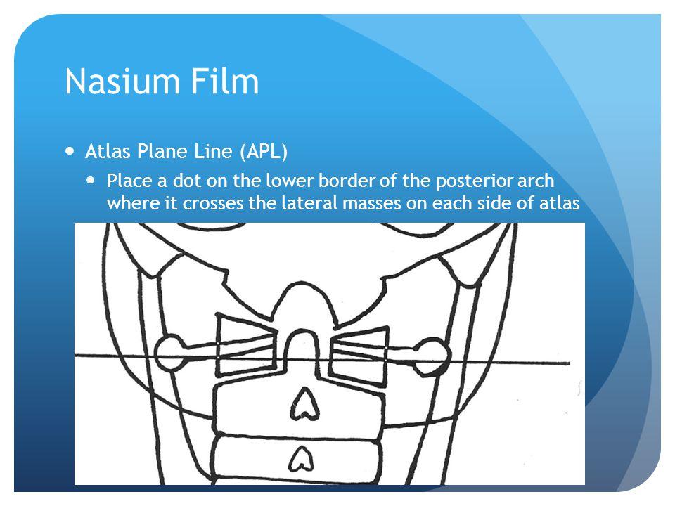 Nasium Film Atlas Plane Line (APL)