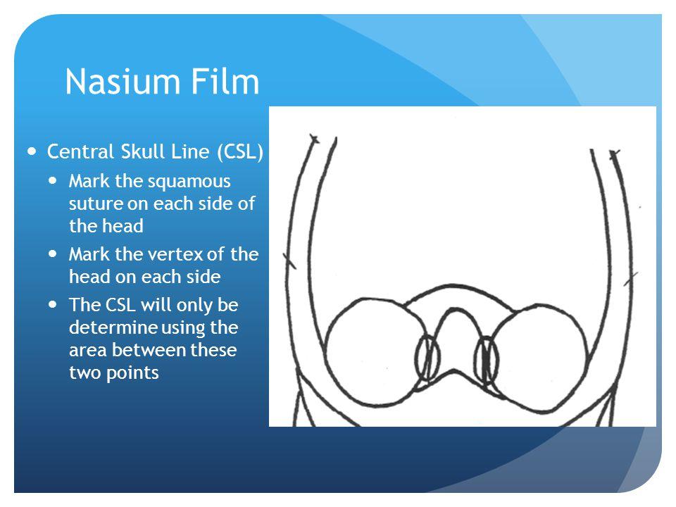 Nasium Film Central Skull Line (CSL)