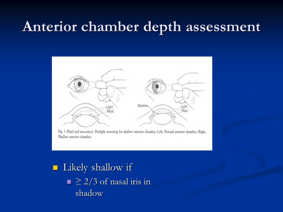 Anterior chamber depth assessment