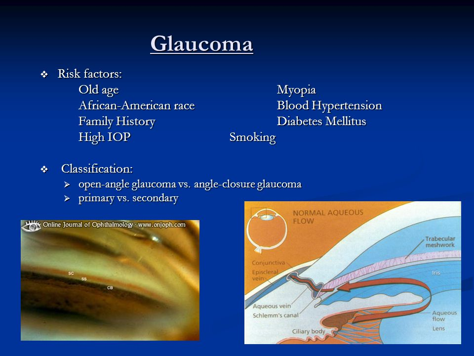 Glaucoma Risk factors: Old age Myopia