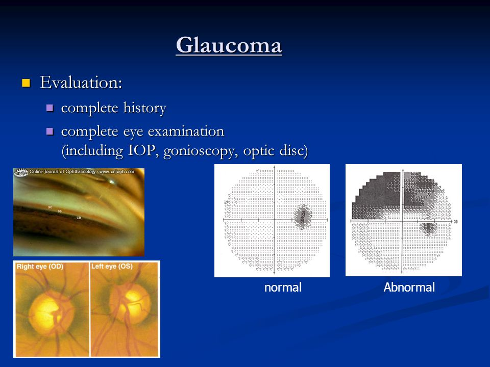 Glaucoma Evaluation: complete history