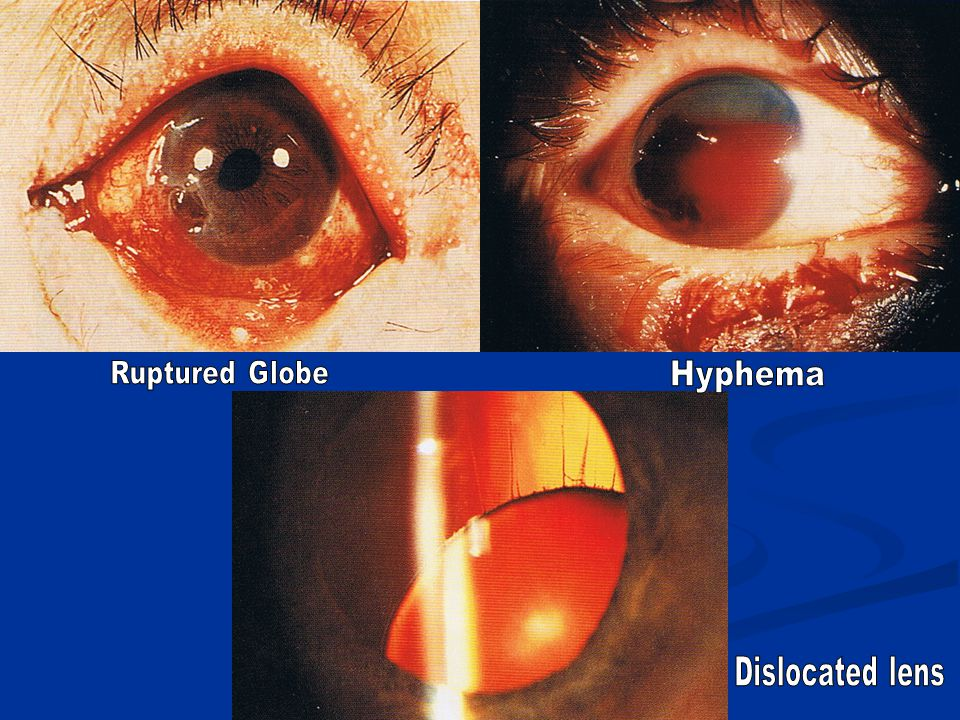 Ruptured Globe Hyphema Dislocated lens