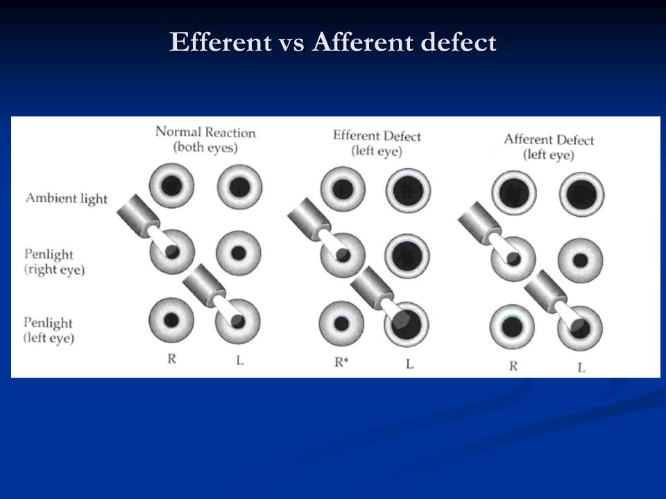 Efferent vs Afferent defect