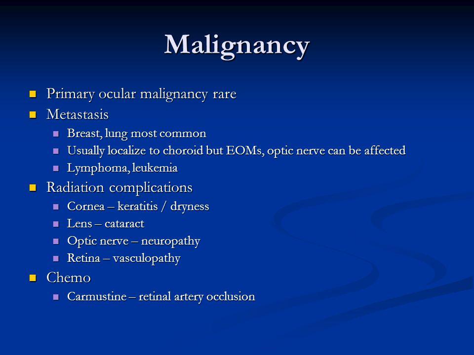 Malignancy Primary ocular malignancy rare Metastasis
