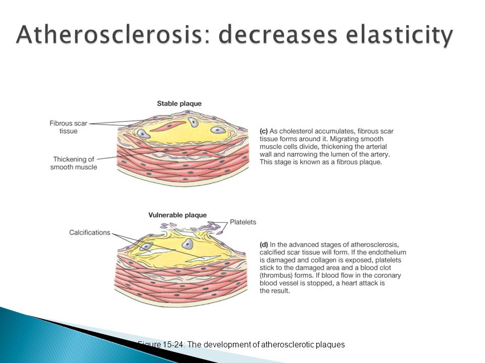 Atherosclerosis: decreases elasticity