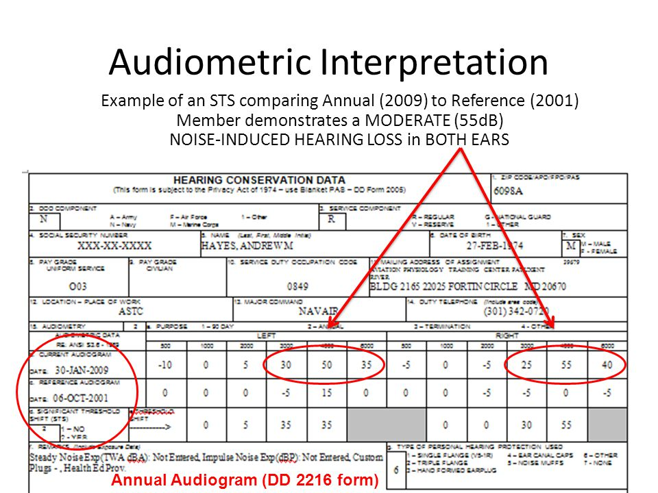 Audiometric Interpretation