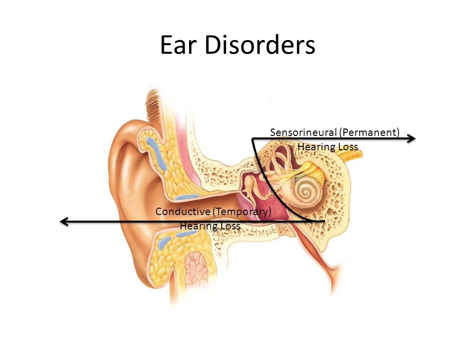 Ear Disorders Sensorineural (Permanent) Hearing Loss
